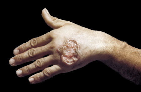 leishmaniasis sufferer offers a helping hand