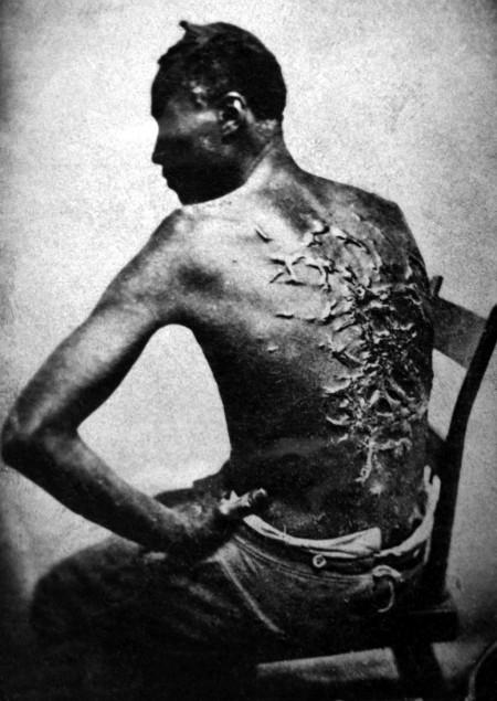 man beaten on back